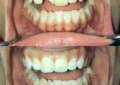 Before & After Cosmetic Dentistry