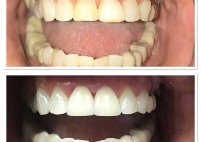 Before & After Teeth Bleaching