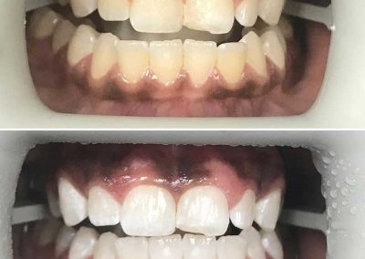 Before & After Cosmetic Treatment
