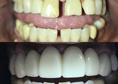 Before & After Dental Bridges