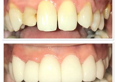 Before & After Dental Implant
