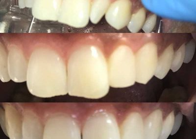Before & After Dental Implant Surgery
