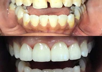 Before & After Dental Implant Service