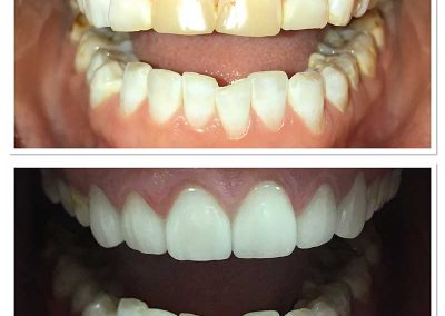 Before & After Dental Veeners