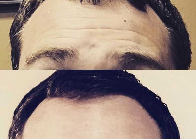 Before & After Male Botox Treatment