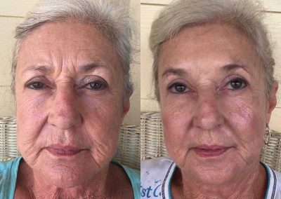 Before & After Ombre Brows Treatment