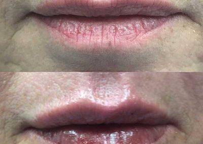 Lip Botox Treatment