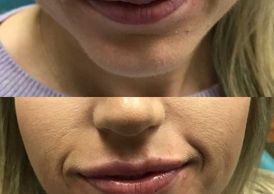 Before & After Lip Treatment