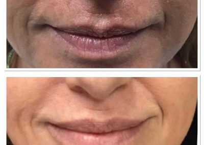 Lip Brightening Treatment